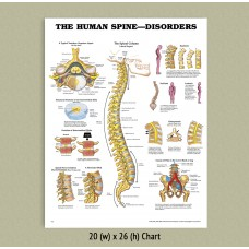 Anatomical Chart - Spine Disorders