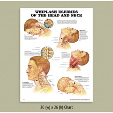 Anatomical Chart - Whiplash