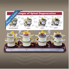 4 Stage Spine Degeneration Model