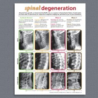 Handout - Spinal Degeneration