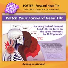 Poster - Forward Head Tilt